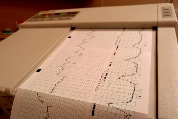 Kardiotokografie im Krankenhaus, über dts Nachrichtenagentur